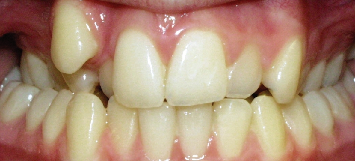 Pre-treatment - Bilateral posterior crossbite