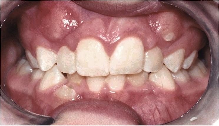 Pre-treatment - Unilateral cross bite
