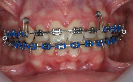 Pre-treatment - Intra oral views